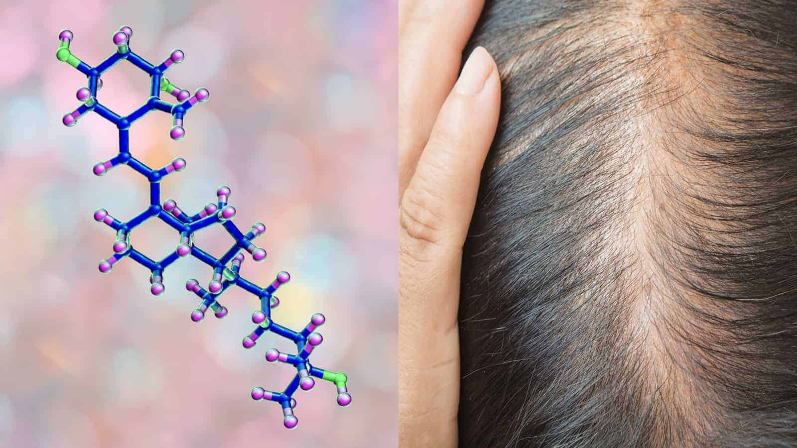 hair loss vitamin d