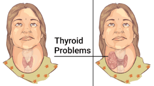 soybeans for thyroid