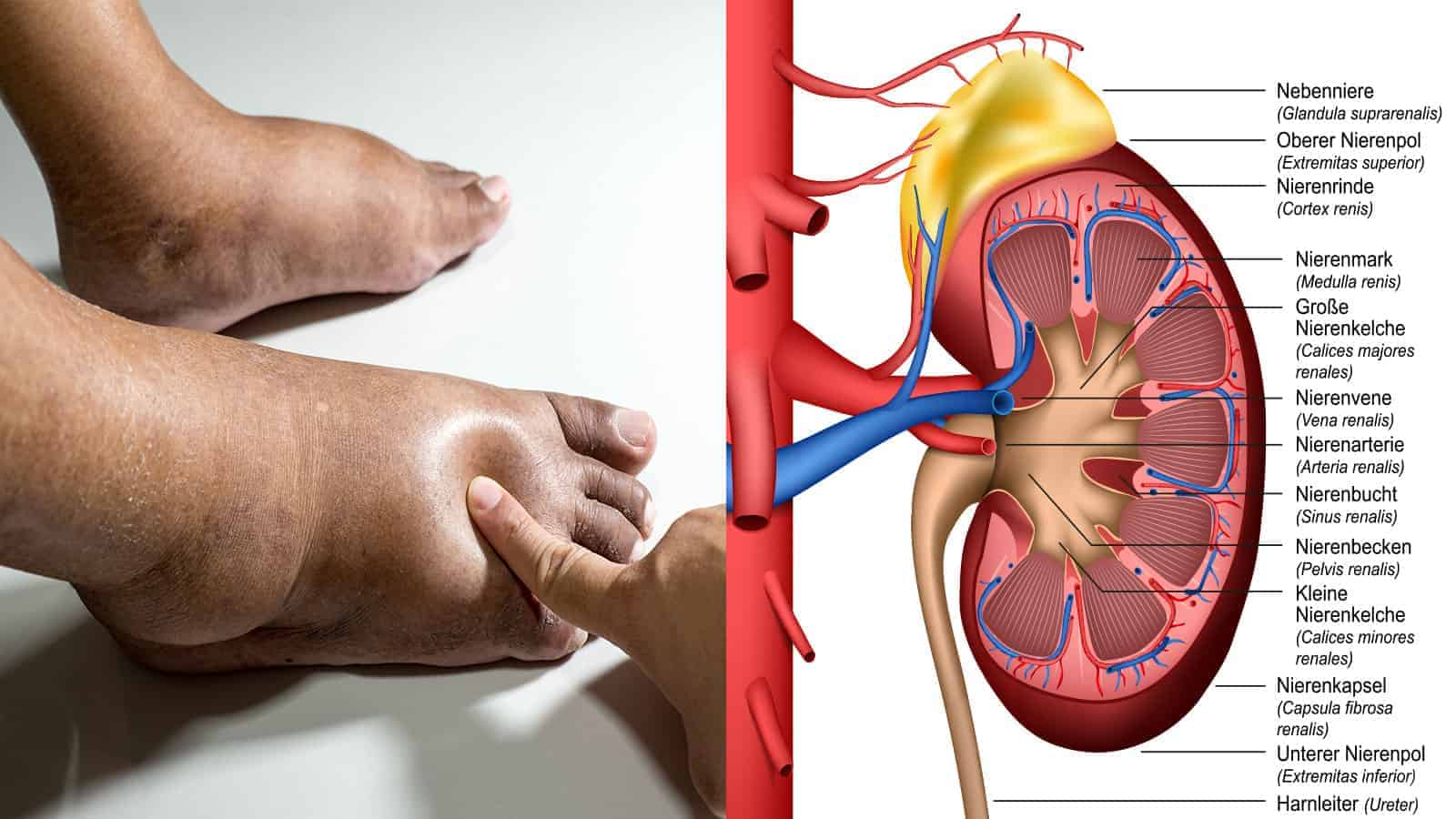 25 Hidden Signs You Have Kidney Problems »