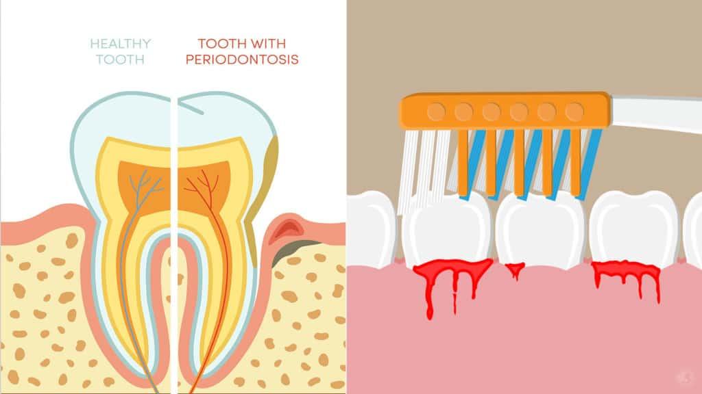 bleeding gums