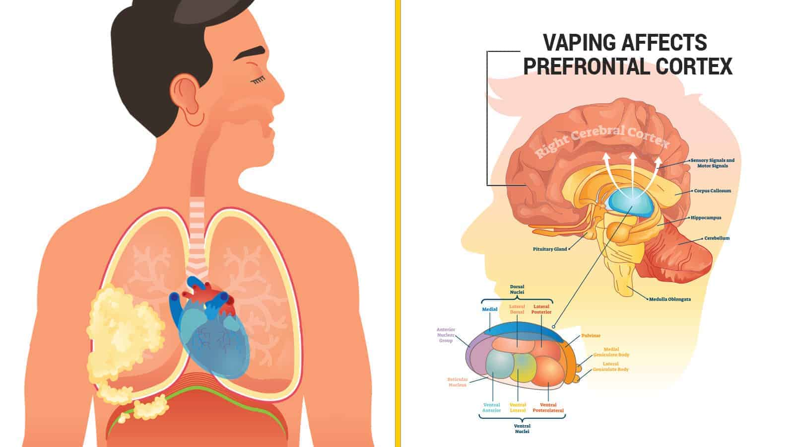 Researchers Reveal How Vaping Causes Brain and Lung Damage »