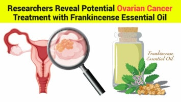 ovarian cancer treatment