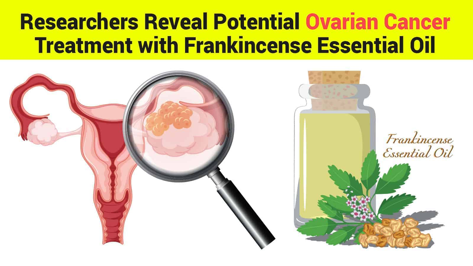 Researchers Reveal Potential Ovarian Cancer Treatment with