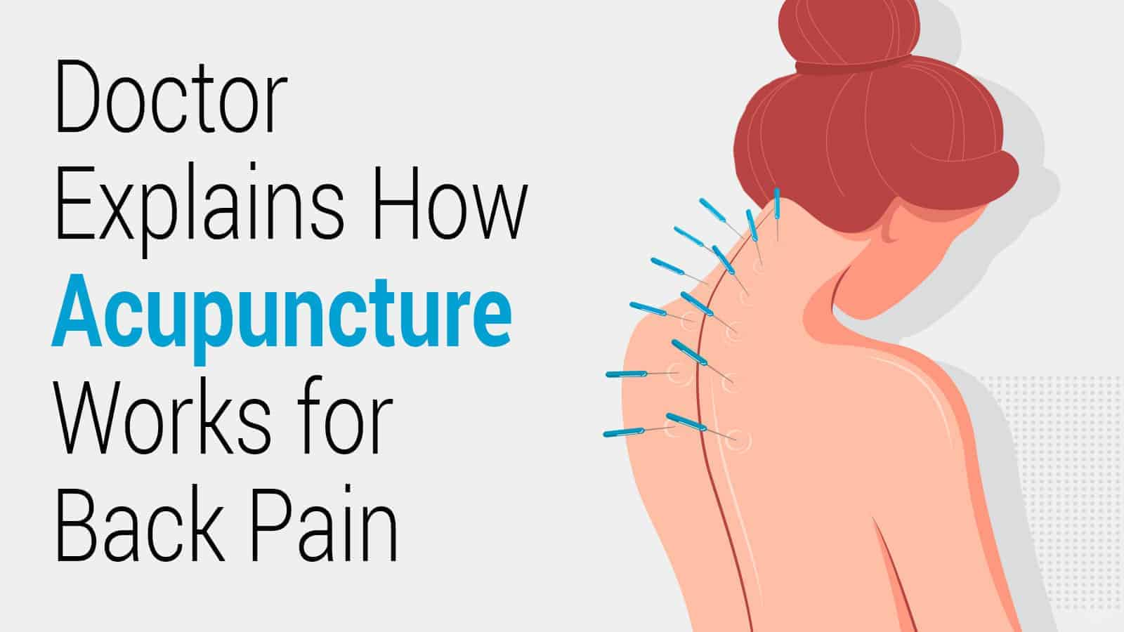 How Acupuncture Actually Works for Back Pain? A Doctor ...