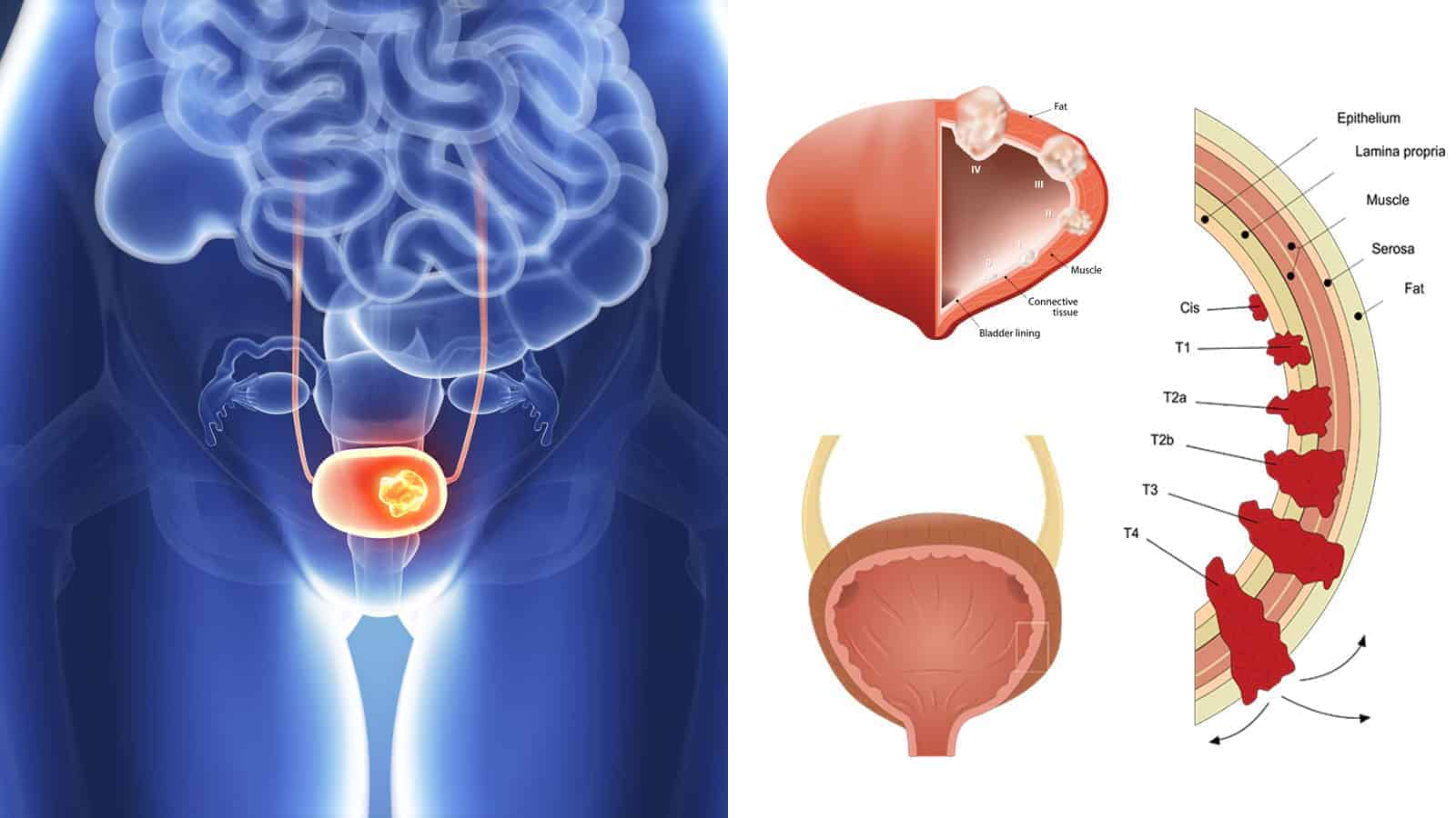 does bladder cancer cause weight loss