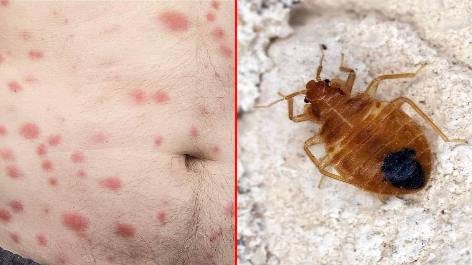 10 Signs Of Bed Bugs To Never Ignore Power Of Positivity