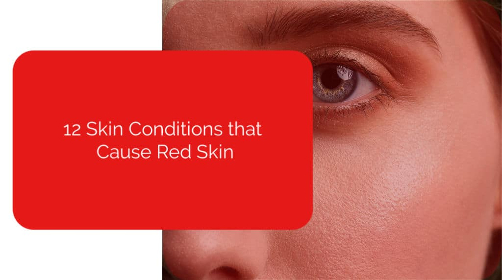 12 Skin Conditions That Cause Red Skin | Power of Positivity