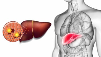 detoxing your liver