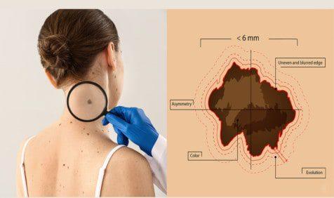skin cancer prevention tips