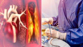 heart procedures
