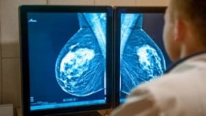 mammogram for persistent breast pain