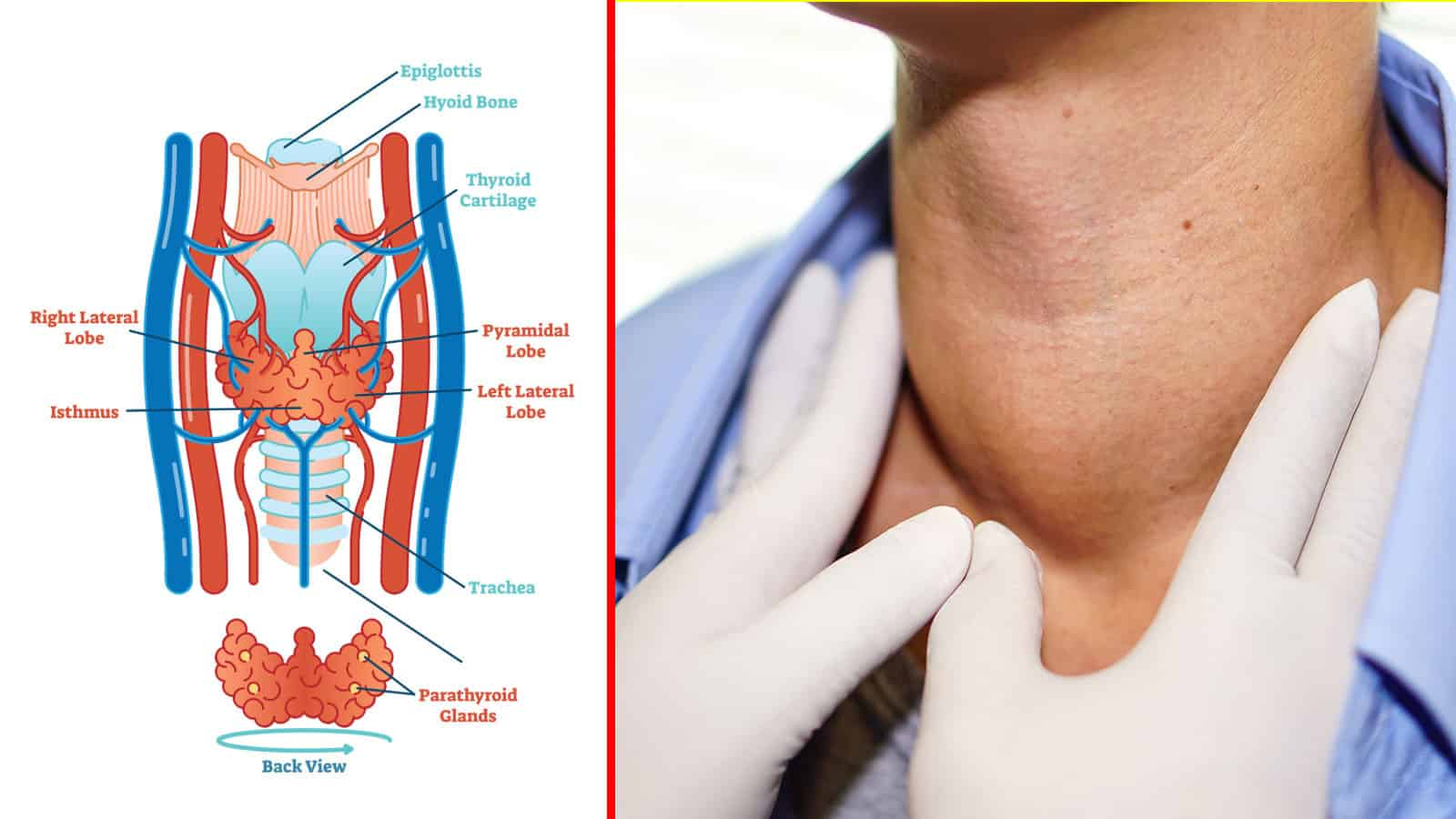 10 Signs Of Thyroid Cancer That Most People Miss