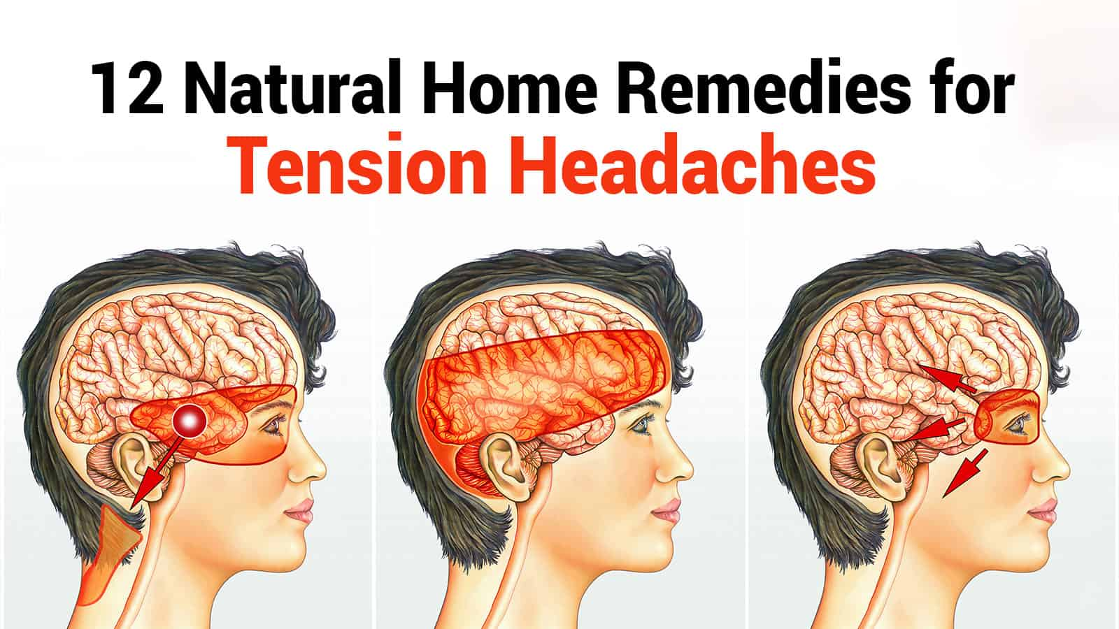 12 Natural Home Remedies for Tension Headaches | 5 Minute Read