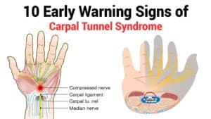 carpal tunnel syndrome or tennis elbow?