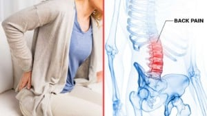 Get rid of back pain - pilates