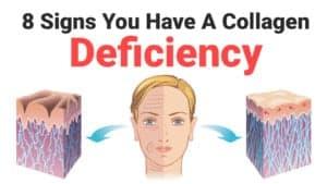 collagen deficiency