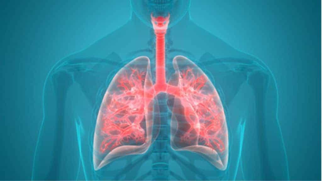 pneumonia featured