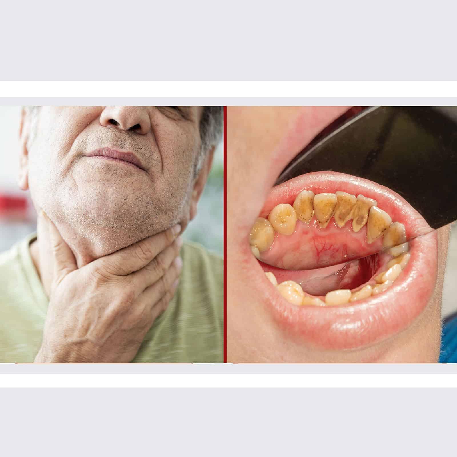 remove papillomas and warts