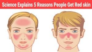 bursitis might cause red skin