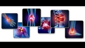 tendinitis and arthritis