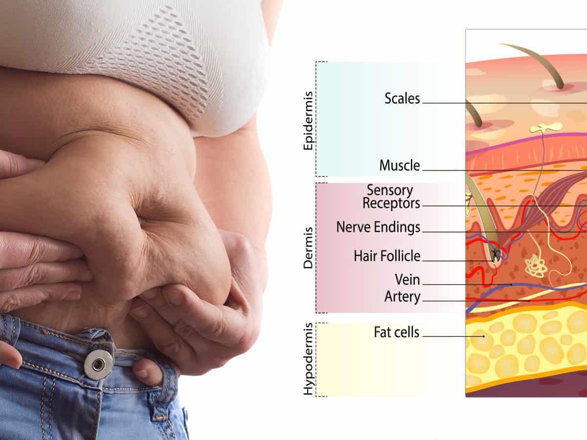 fat burning co2 ddp pierde in greutate