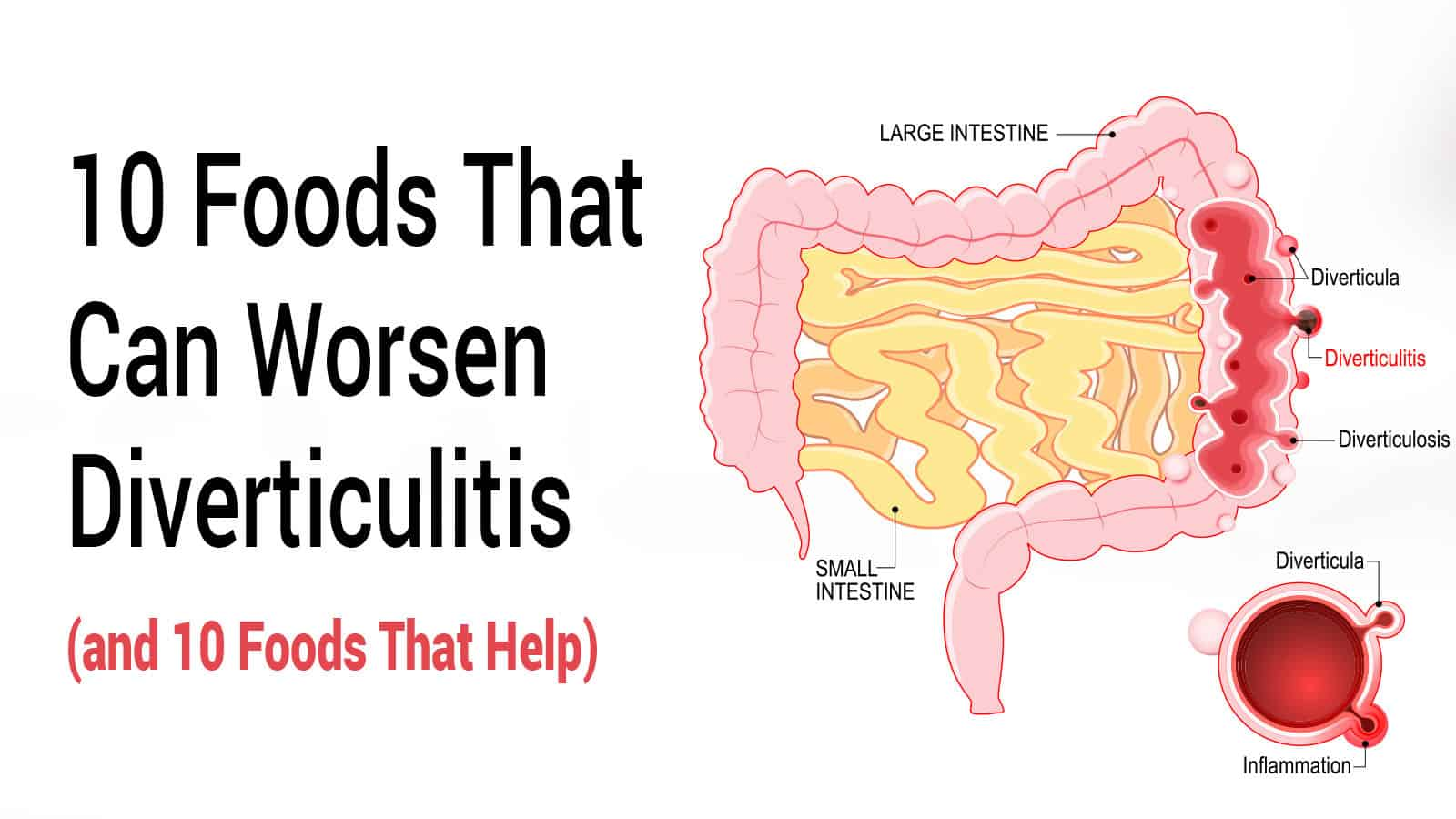 10 Foods That Can Worsen Diverticulitis (and 10 Foods That Help)