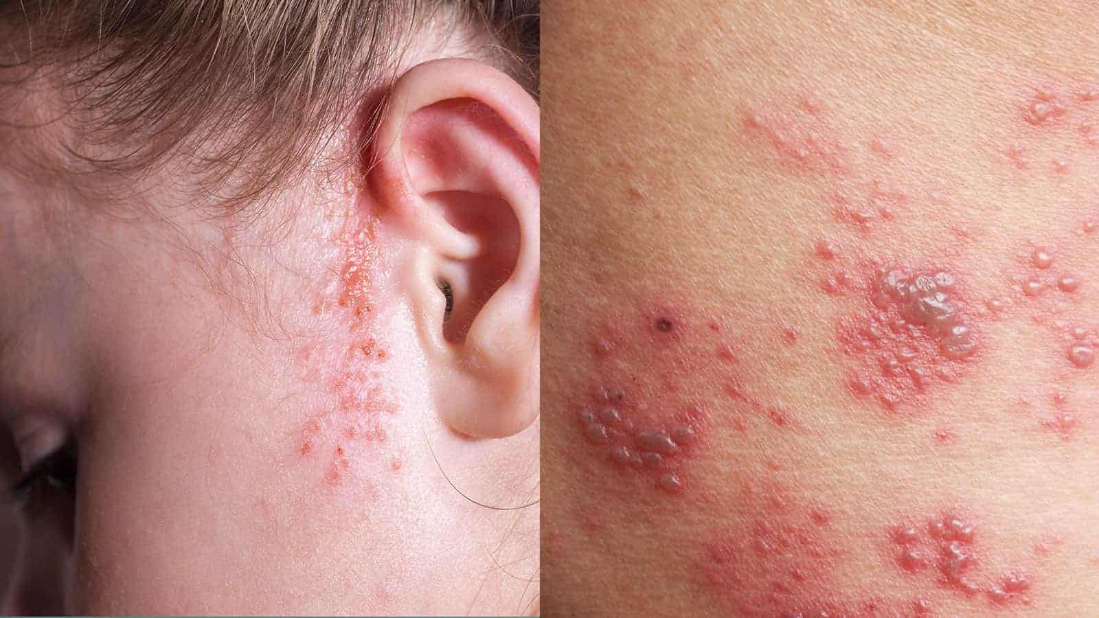 dermatologic disease