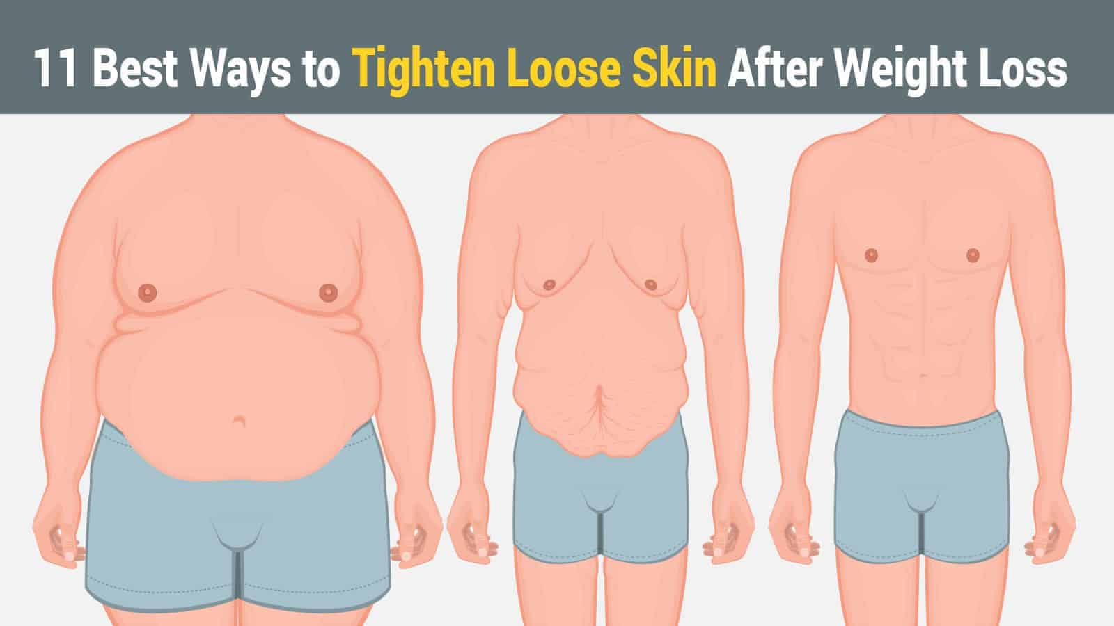 Loss weight tighten after skin How to