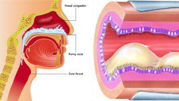 nasal congestion