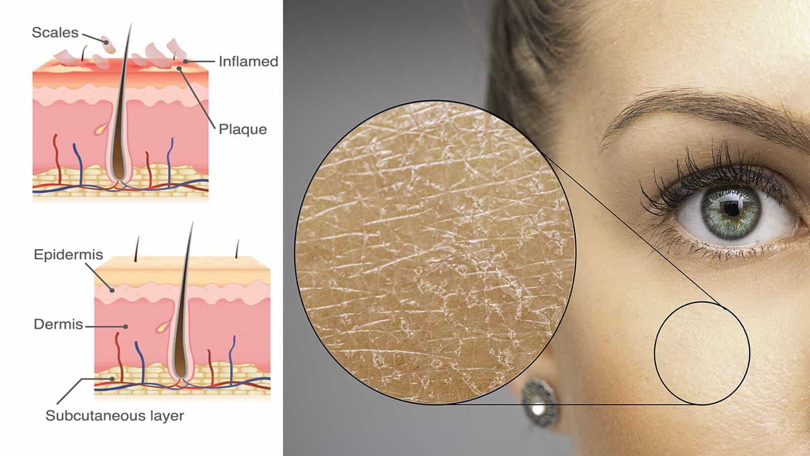 heal flaky skin