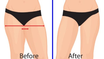 thigh fat