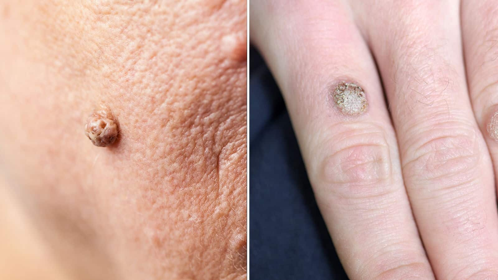 Skin warts on face and neck -