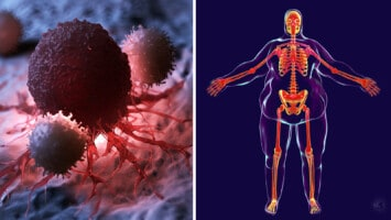 tumor growth obesity