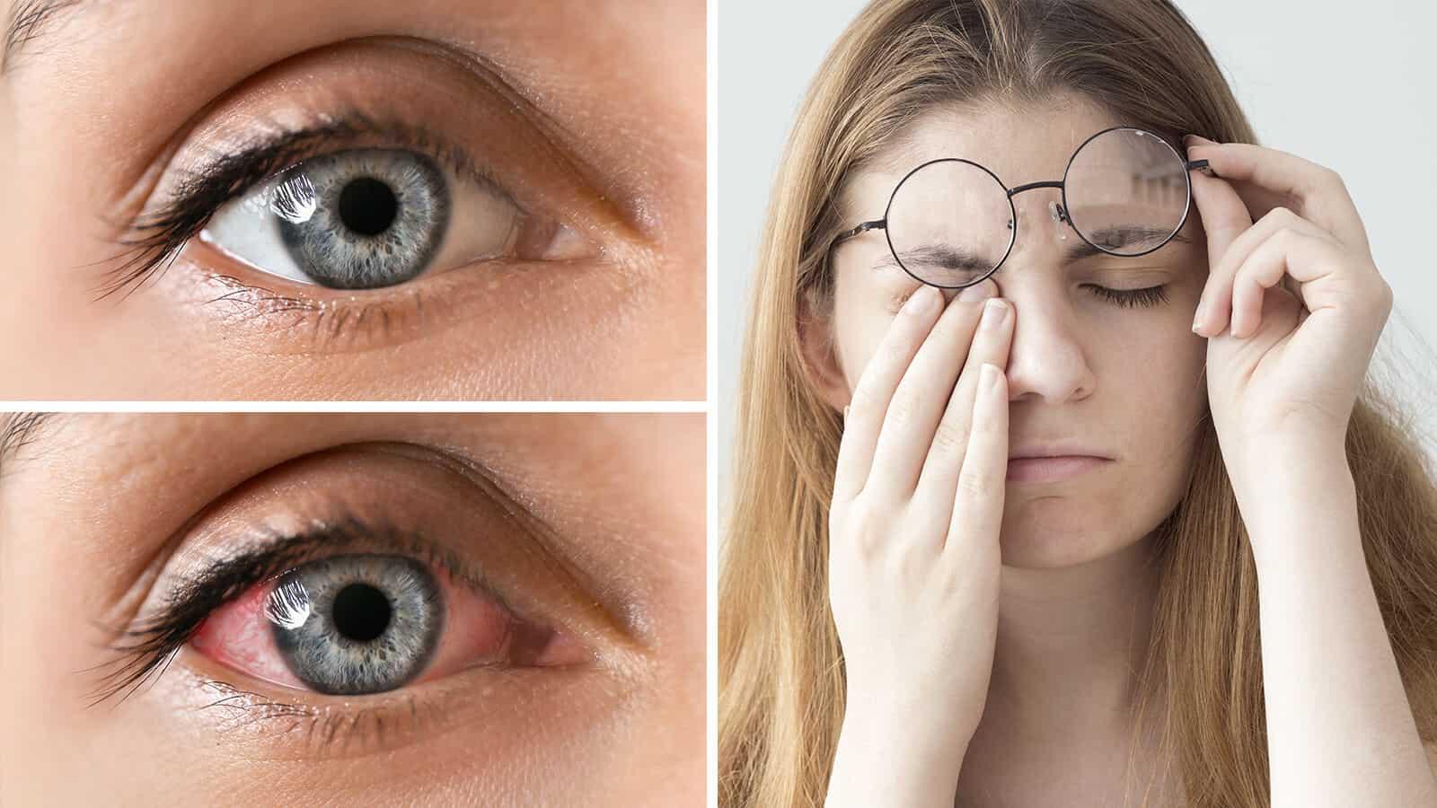 eye fatigue