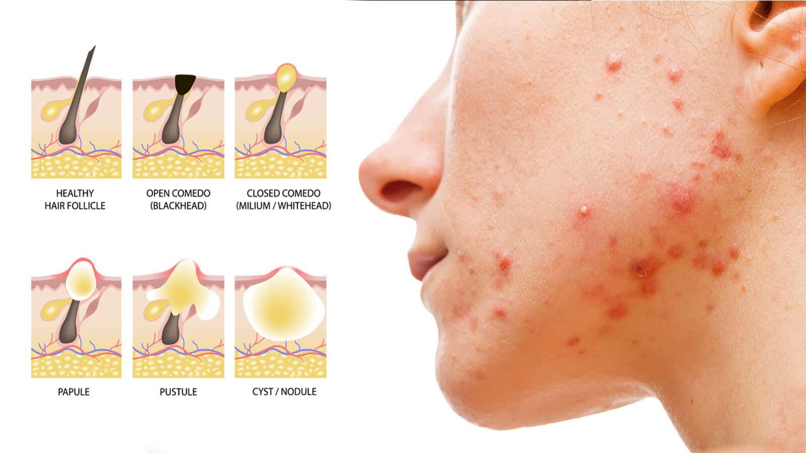 acne prone skin