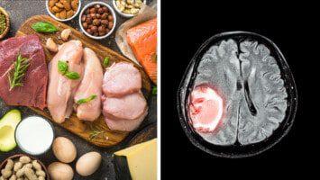 brain tumor growth keto